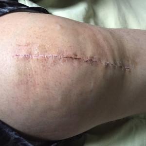 knees 2 weeks 2