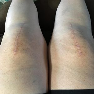 knees-1-year-later
